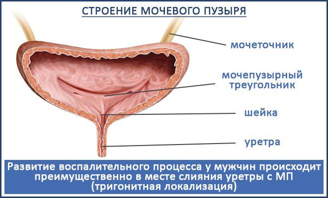 Шеечный цистит симптомы лечение у женщин