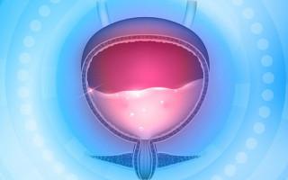 Особенности и лечение интеркуррентного цистита