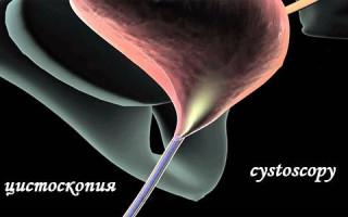 Все что нужно знать о цистоскопии