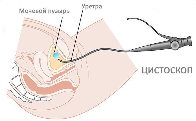 Цистоскоп