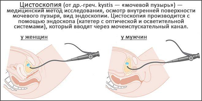 Цистоскопия мочевого пузыря