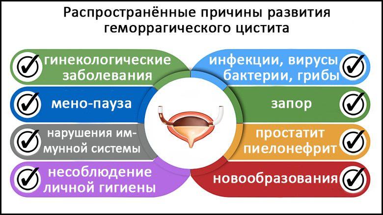 Геморрагический цистит: особенности у женщин, детей и мужчин ...