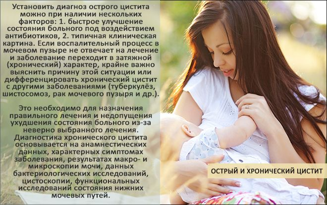 Цистит при кормлении ребенка