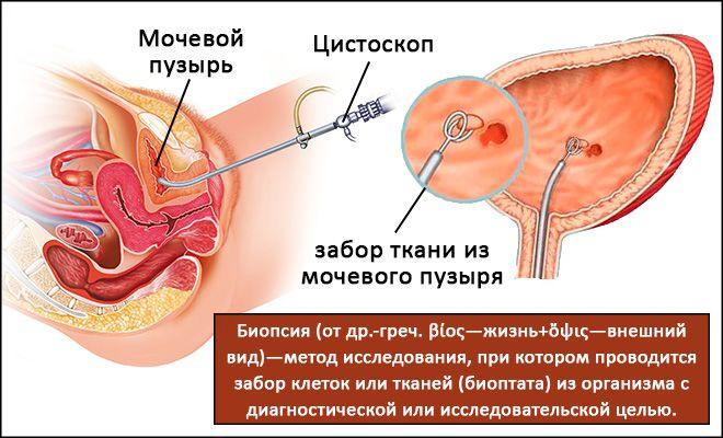 Выход вылечить лейкоплакию мочевого пузыря отзывы Сагдиев типа