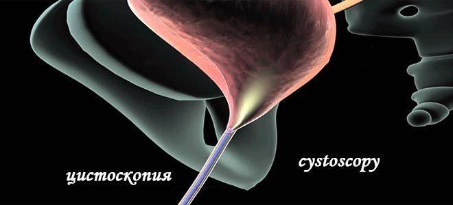 Диагностика цистоскопия
