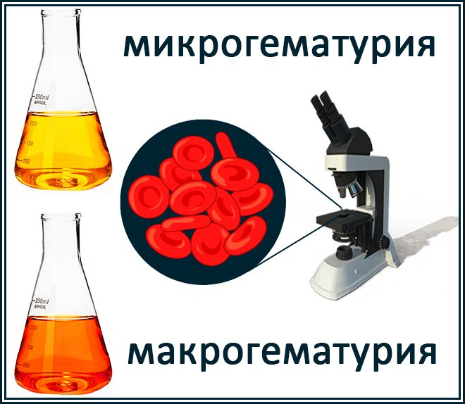 микрогематуриямакрогематурия