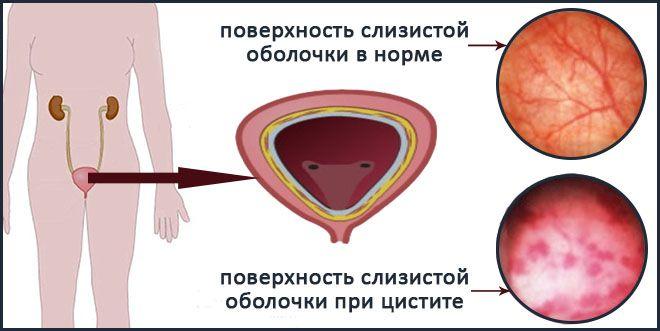 Интерстициальный простатит свечи релиф ультра от простатита