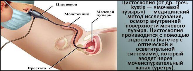 вид цистоскопия