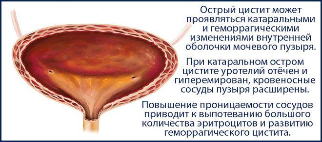 кровенаполнение