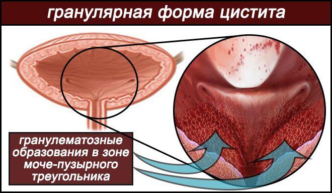 гранулематозные