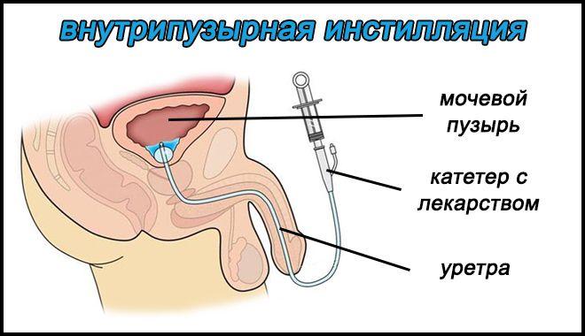 инстилляция МП