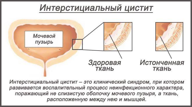 соединительная