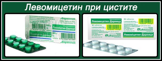 Лечение цистита в Киеве запись в клиники цены на услуги и отзывы пациентов