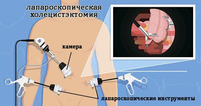 лапароскопическая ХЭ