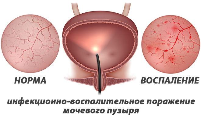 воспаление тканей