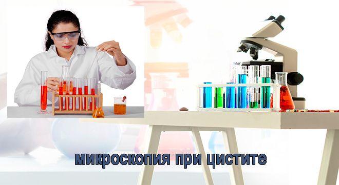 микроскопия при цистите