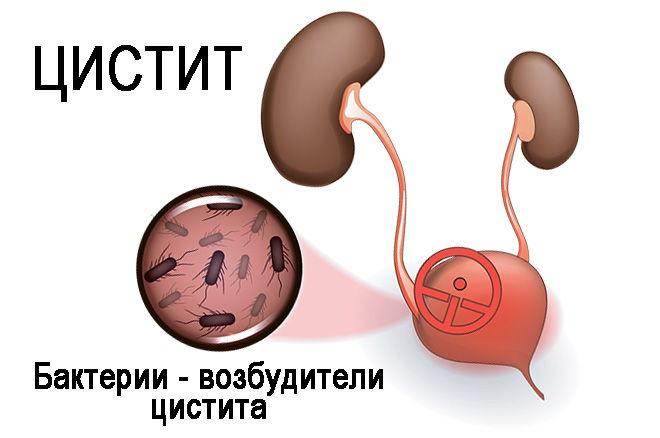 воспаление моч пузыря