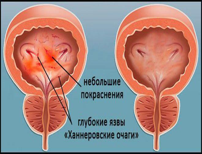 hirurg-provodit