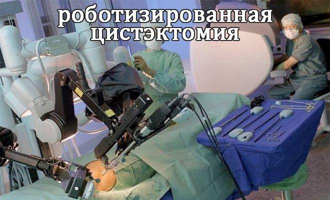 robotizirovannaya